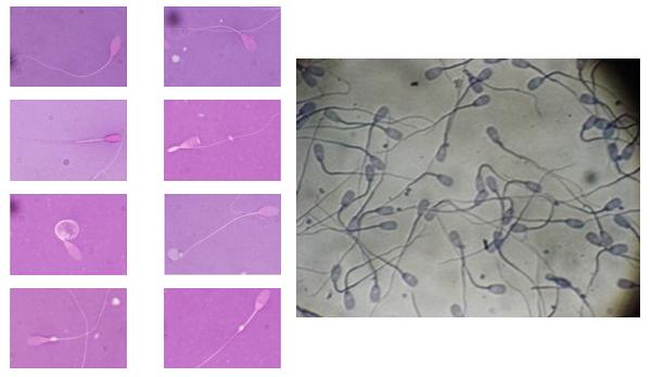 Espermiogramas